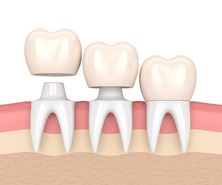 Dental crowns at Rockville Centre Dentistry
