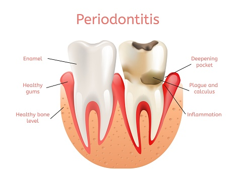 Periodontal disease treatment at Rockville Centre Dentistry