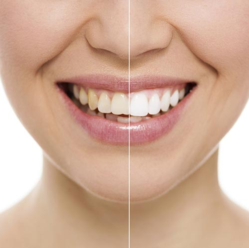 Teeth whitening before and after smile at Rockville Centre Dentistry